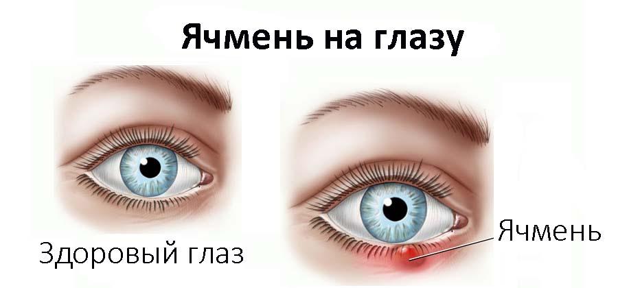 Прыщик на веке глаза под ресницами