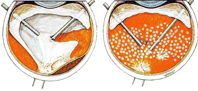 Глазные операции - какие они бывают